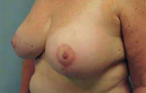 Breast reduction post treatment photo